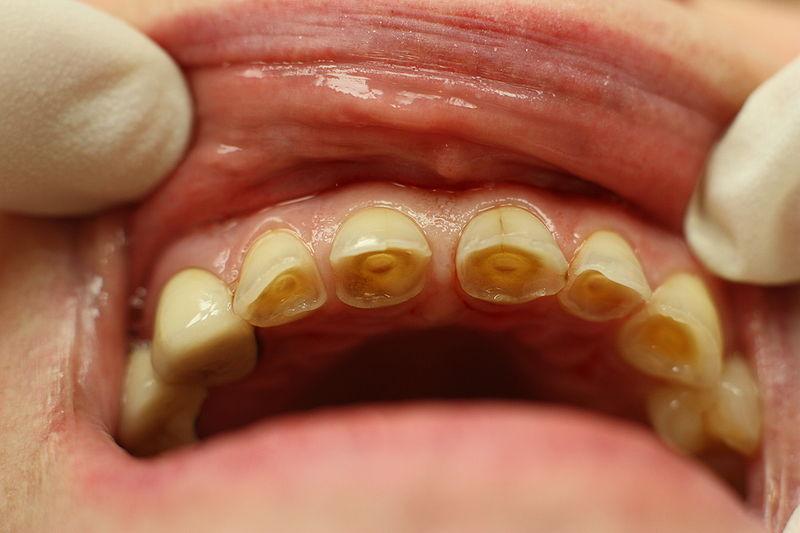 טיפול שיניים רשלני
