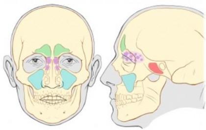 פריצה לסינוס במהלך עקירת שן עליונה