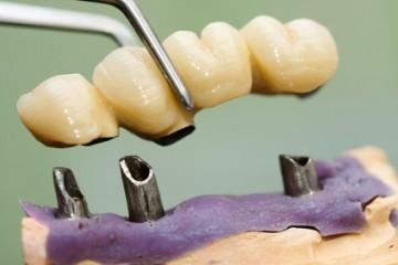 כתרים לקויים בשיניים כתוצאה מרשלנות